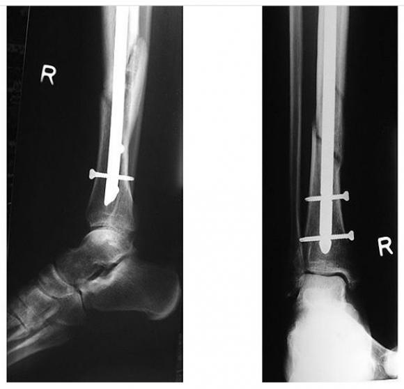 Rossi eltörte a lábát